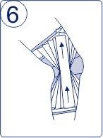 Тейпирование колена, техника тейпирования колена, Pharmacels, шаг 6