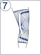 Тейпирование колена, техника тейпирования колена, Pharmacels, шаг 7