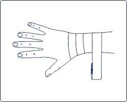 Техника тейпирования запястья, техника тейпирования запястья, Pharmacels, вариант 3 шаг 1